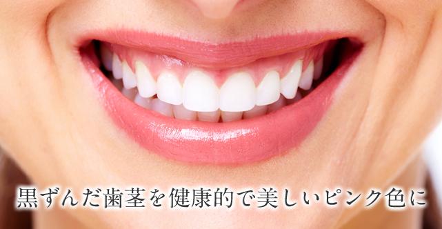 黒ずんだ歯茎を健康的で美しいピンク色に