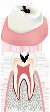 虫歯の後期状態(初期)