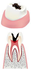 虫歯の後期状態(中期)