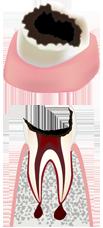虫歯の末期状態